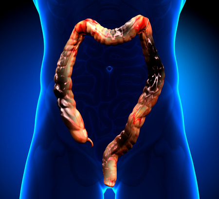 colon cancer colorectal cancer