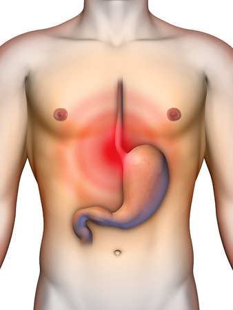 acid reflux from stomach causing chest pain